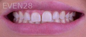 Neil-Hadaegh-Porcelain-Veneers-before-5b
