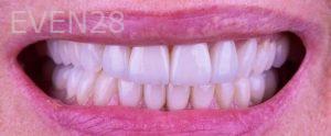 Neil-Hadaegh-Porcelain-Veneers-before-7