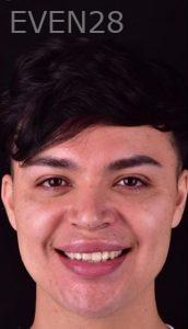 Neil-Hadaegh-Smile-Makeover-before-1