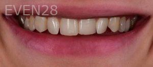 Neil-Hadaegh-Smile-Makeover-before-2
