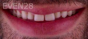 Neil-Hadaegh-Smile-Makeover-before-3b