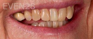 Neil-Hadaegh-Smile-Makeover-before-4