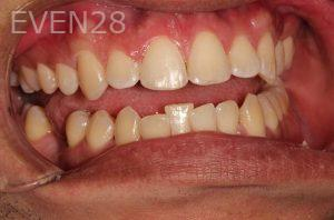 Parnaz-Aurasteh-Dental-Bonding-after-1