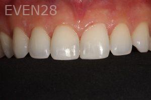 Parnaz-Aurasteh-Dental-Bonding-after-2