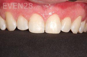 Parnaz-Aurasteh-Dental-Bonding-after-3