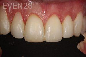 Parnaz-Aurasteh-Dental-Bonding-after-4