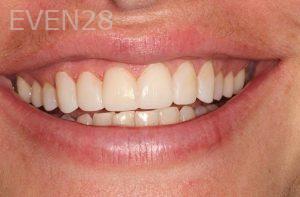 Parnaz-Aurasteh-Dental-Bonding-after-5