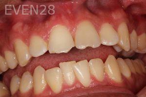 Parnaz-Aurasteh-Dental-Bonding-before-1