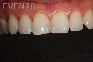 Parnaz-Aurasteh-Dental-Bonding-before-2