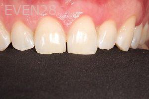 Parnaz-Aurasteh-Dental-Bonding-before-3