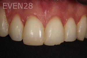 Parnaz-Aurasteh-Dental-Bonding-before-4