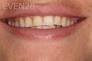 Parnaz-Aurasteh-Dental-Bonding-before-5