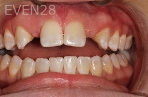 Parnaz-Aurasteh-Dental-Bridge-before-2