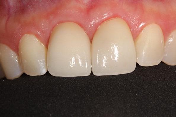 Parnaz-Aurasteh-Dental-Crowns-after-1