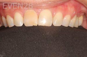 Parnaz-Aurasteh-Dental-Crowns-before-1