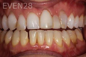 Parnaz-Aurasteh-Smile-Makeover-before-1