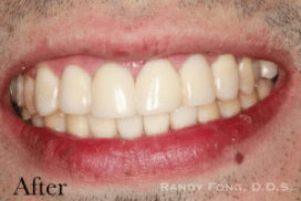 Randy-Fing-Bioclear-Black-Triangle-Treatment-after-1