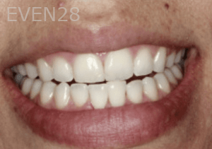 Randy-Fing-Bioclear-Black-Triangle-Treatment-after-2
