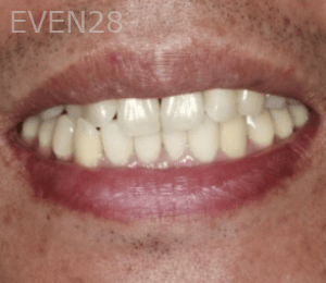 Randy-Fing-Bioclear-Black-Triangle-Treatment-after-5