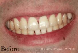 Randy-Fing-Bioclear-Black-Triangle-Treatment-before-1