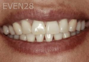 Randy-Fing-Bioclear-Black-Triangle-Treatment-before-3