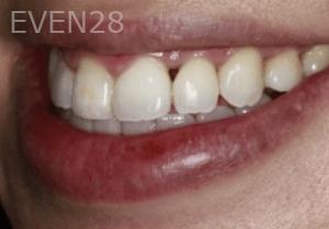 Randy-Fing-Bioclear-Black-Triangle-Treatment-before-4