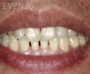 Randy-Fing-Bioclear-Black-Triangle-Treatment-before-5