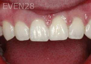 Randy-Fing-Bioclear-Closing-Teeth-Gaps-after-1