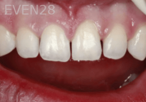 Randy-Fing-Bioclear-Closing-Teeth-Gaps-before-1
