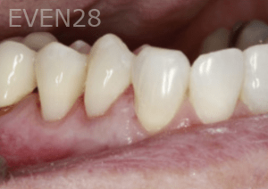 Randy-Fing-Bioclear-Root-Overlay-Procedure-after-1
