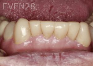 Randy-Fing-Bioclear-Teeth-Rejuvenation-after-1