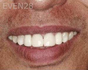 Randy-Fing-Bioclear-Teeth-Rejuvenation-after-4