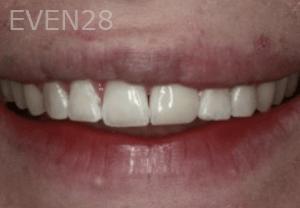 Randy-Fing-Bioclear-Teeth-Rejuvenation-after-5