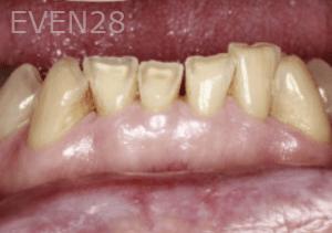 Randy-Fing-Bioclear-Teeth-Rejuvenation-before-1