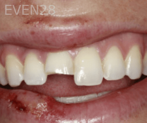 Randy-Fing-Bioclear-Teeth-Rejuvenation-before-3