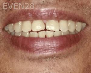 Randy-Fing-Bioclear-Teeth-Rejuvenation-before-4