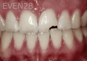 Randy-Fing-Bioclear-Teeth-Rejuvenation-before-5