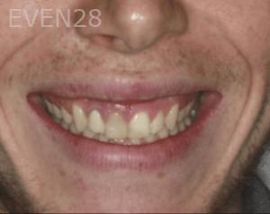 Randy-Fing-Bioclear-Veneers-before-1