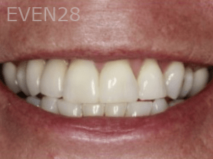 Randy-Fing-Dental-Implants-after-1