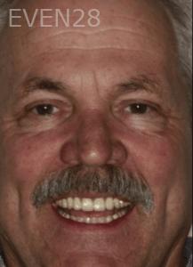 Randy-Fing-Dental-Implants-after-2