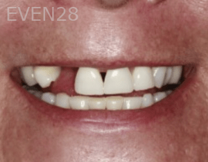 Randy-Fing-Dental-Implants-before-1
