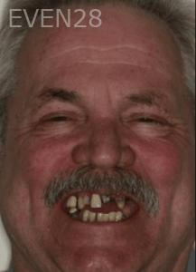 Randy-Fing-Dental-Implants-before-2