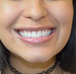 Richard-Furuichi-Teeth-Whitening-after-1