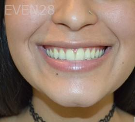 Richard-Furuichi-Teeth-Whitening-before-1