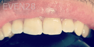 Roy-Kim-Dental-Bonding-after-1