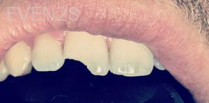 Roy-Kim-Dental-Bonding-before-1