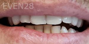 Roy-Kim-Dental-Crown-after-1