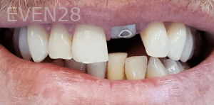 Roy-Kim-Dental-Crown-before-1