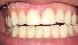 Rozita-Nosratabadi-Dental-Bonding-after-1