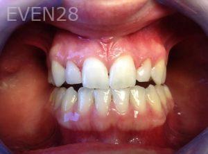 Rozita-Nosratabadi-Dental-Bonding-after-2